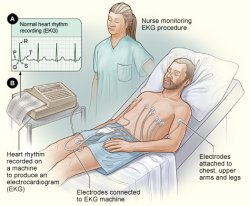 The image shows the standard setup for an EKG. In figure A, a normal heart rhythm recording shows the electrical pattern of a regular heartbeat. In figure B, a patient lies in a bed with EKG electrodes attached to his chest, upper arms, and legs. A nurse monitors the painless procedure.