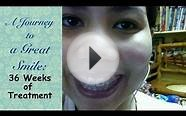 A Journey to a Great Smile: 36 Weeks of treatment